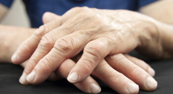 Treatment options and medications for managing rheumatoid arthritis