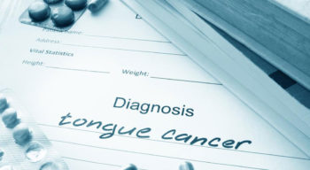 Common symptoms of tongue cancer