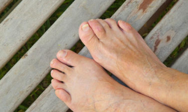 Home remedies for curing toenail fungus