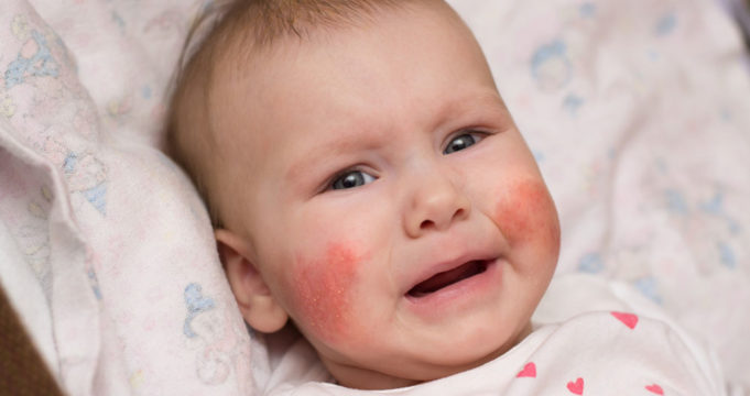 Eczema in babies and how to handle it