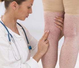 Everything There Is to Know About Varicose Veins