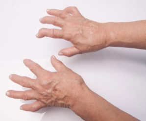 Treatment For Fibromyalgia And Rheumatoid Arthritis Symptoms