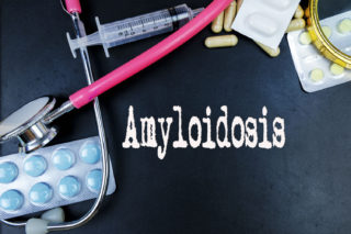 Amyloidosis – warning symptoms and treatment options