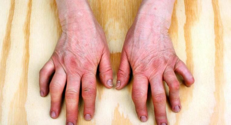 Do You Have Psoriatic Arthritis Symptoms Elderlytimes