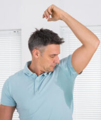 An overview of hyperhidrosis