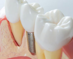 4 practical tips to maintain dental implants for seniors