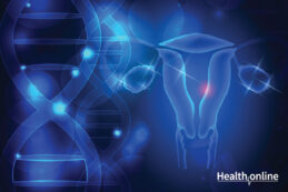 Introduction to Polycystic Ovary Syndrome (PCOS))