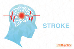 Introduction and Types of Stroke