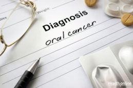 Diagnosis-of-Oral-Cancer