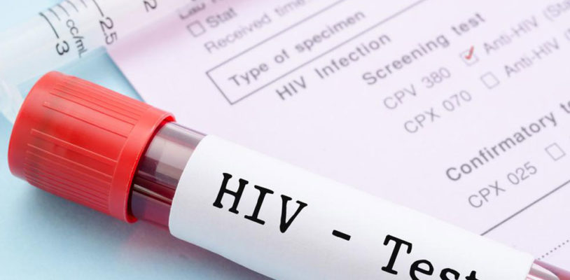 Know More About The Testing Of HIV