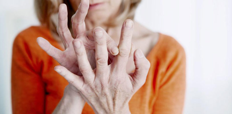 Know the Common Symptoms Of Rheumatoid Arthritis