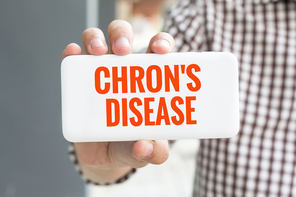 All You Need to Know about Chron's disease