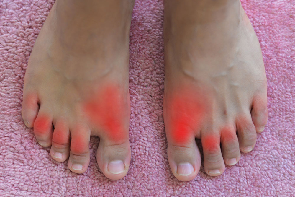 All you need to Know about Gout and Its Treatment