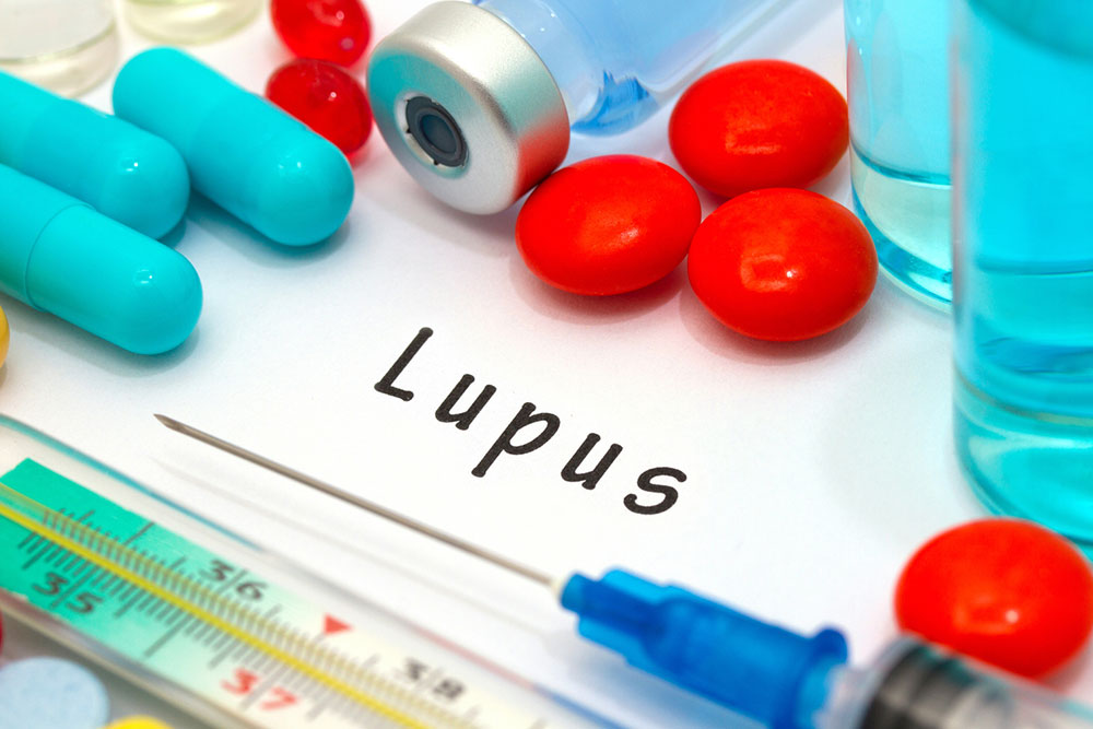 Causes and Symptoms of Lupus