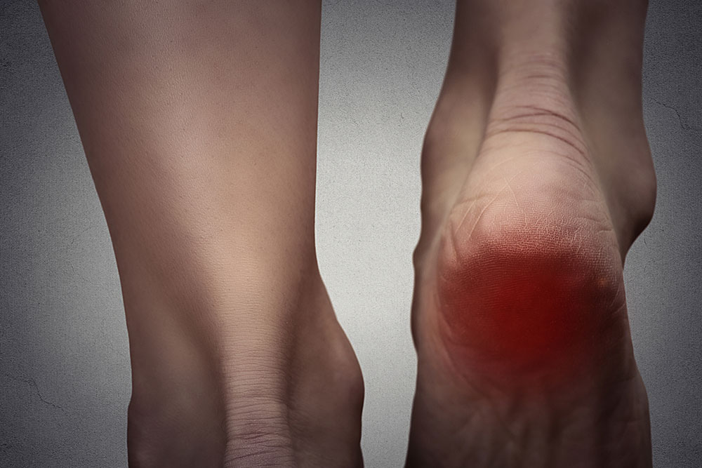Causes and Treatment of Fibromyalgia Foot Pain