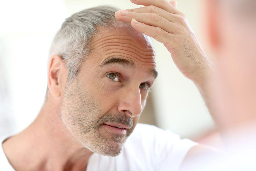 Essential Vitamins for Preventing Hair Loss