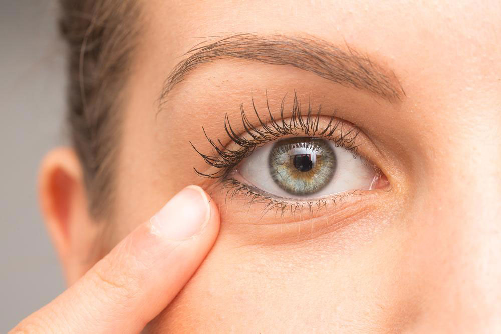 How to Get Rid of Under Eye Bags Naturally