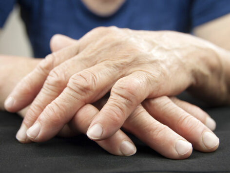 5 foods that can help ease the symptoms of arthritis