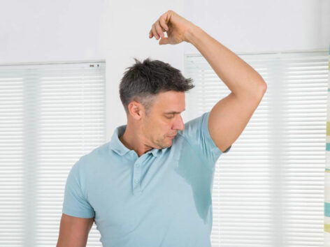 Causes, Complications, and Treatments for Excessive Sweating