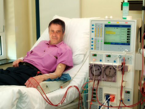 Essential Things to Know about Kidney Dialysis