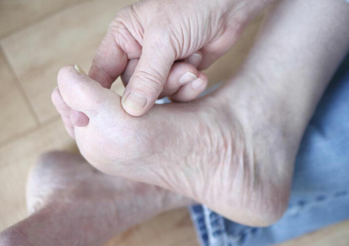 Things to Know about Swollen Finger Pain