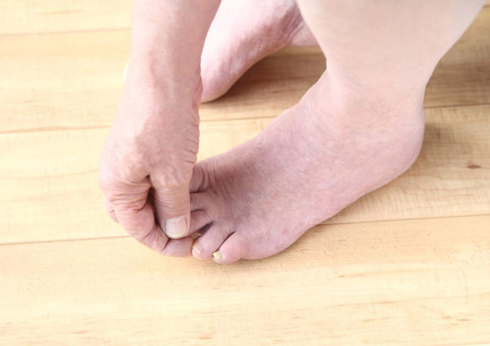 A Complete Guide to Diabetic Feet Care