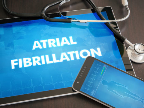 All You Need to Know about Atrial Fibrillation