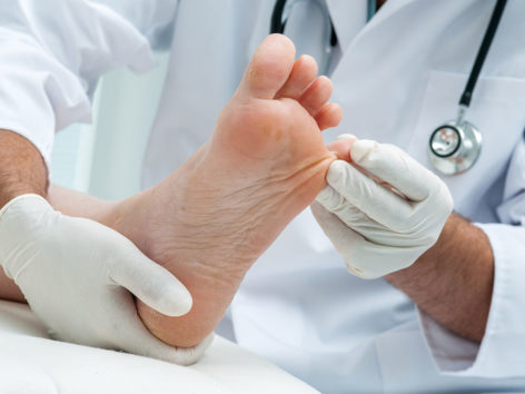 Effective Treatments for Toenail Fungus