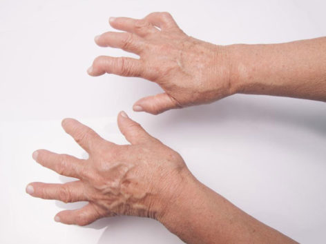 The Most Common Rheumatoid Arthritis Treatments