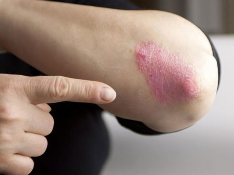 Types and Treatment of Chronic Psoriasis