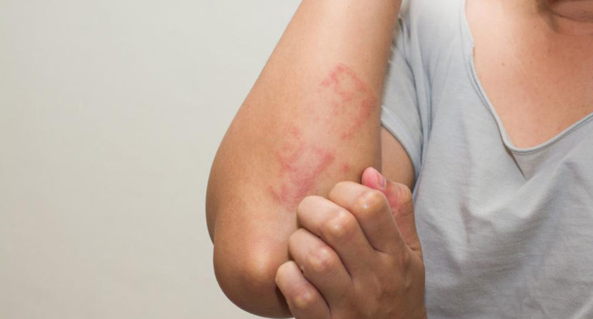How to Treat Shingles with Conventional and Alternative ...