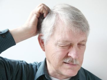 Overview – Causes of Hair Loss