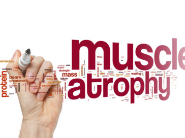 Signs and Symptoms of Muscle Atrophy