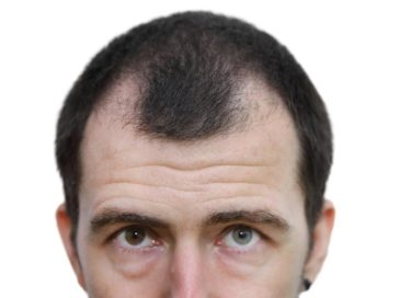 Treatment Options for Hair Loss