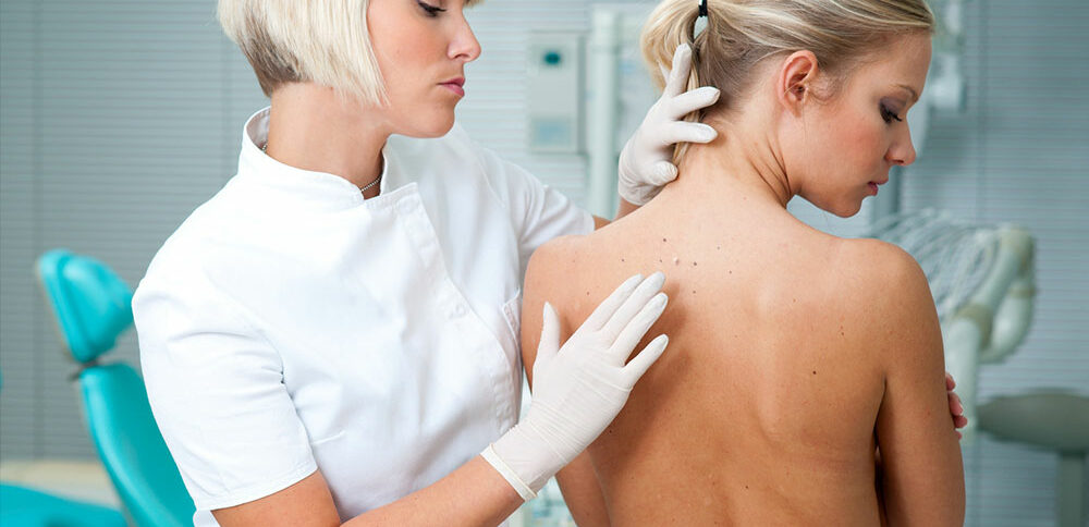 3 Common Types of Skin Cancer