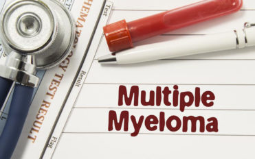Dealing with multiple myeloma – Things you should know about