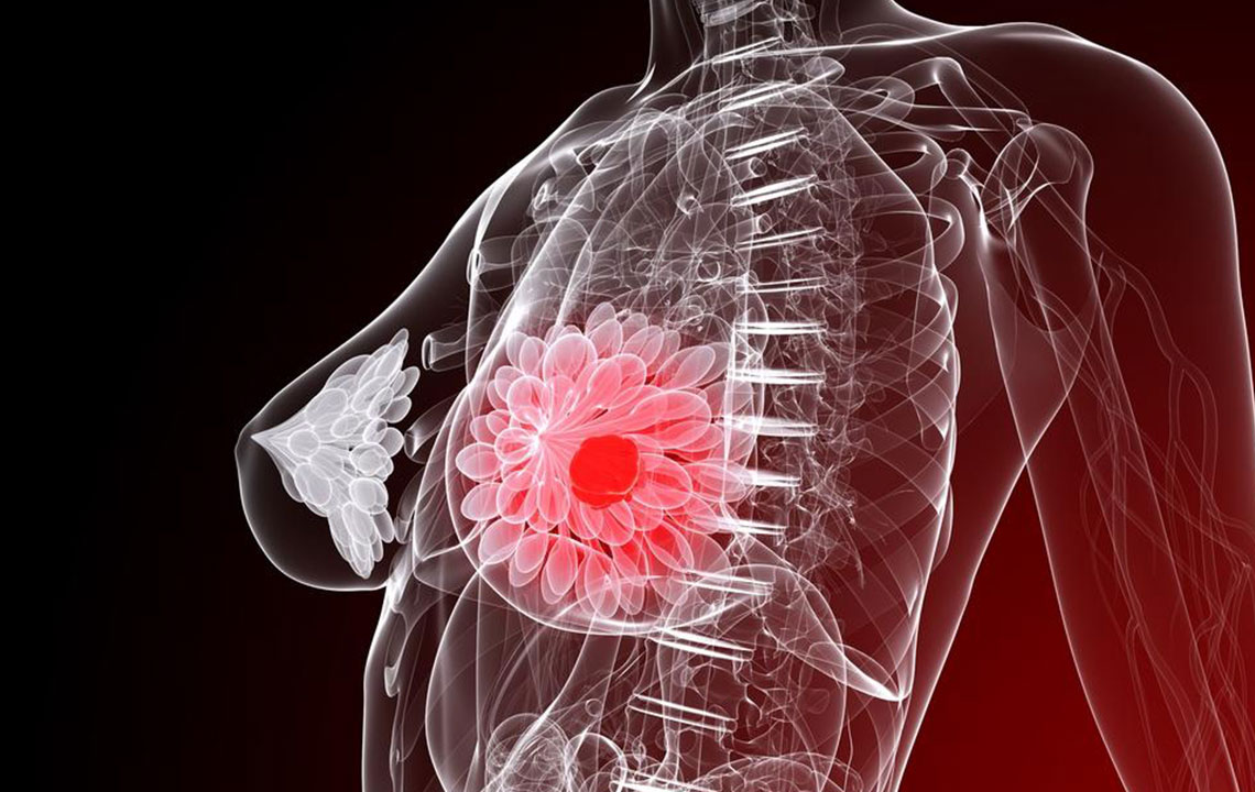 Five things you need to know about breast cancer