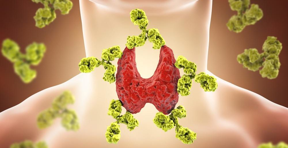 All About Hashimoto's Thyroiditis