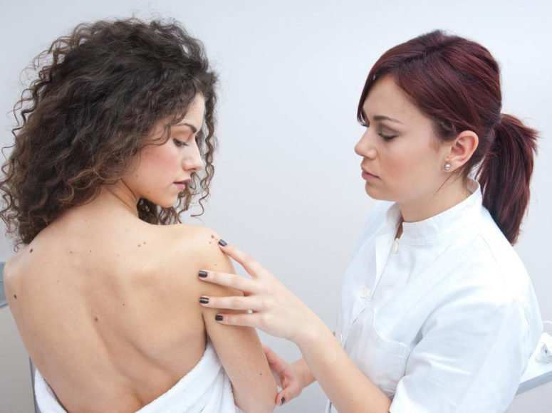 The causes and types of melanoma